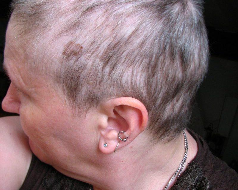 Wie kann ich diffusen Haarausfall (alopecia diffusa) stoppen?