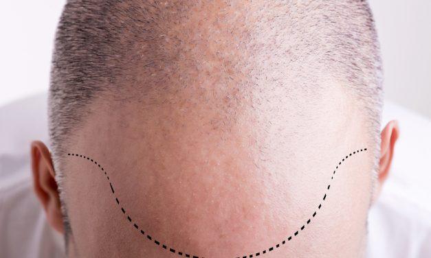 Haartransplantation gegen Haarausfall