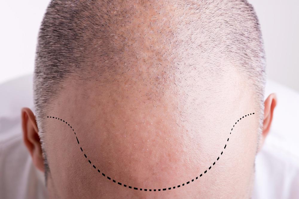 Haartransplantation Erfahrungen von Serdar