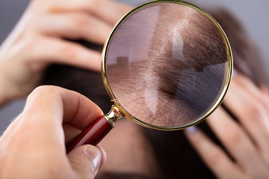 Dermatologist prüft Haare einer Frau mit Haarausfall
