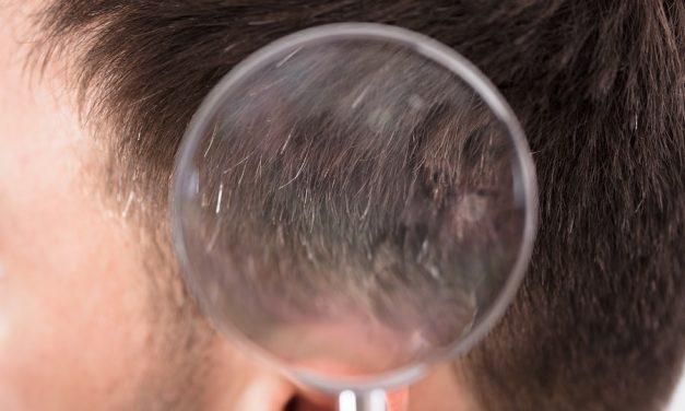 4 Varianten, um Haarausfall zu testen