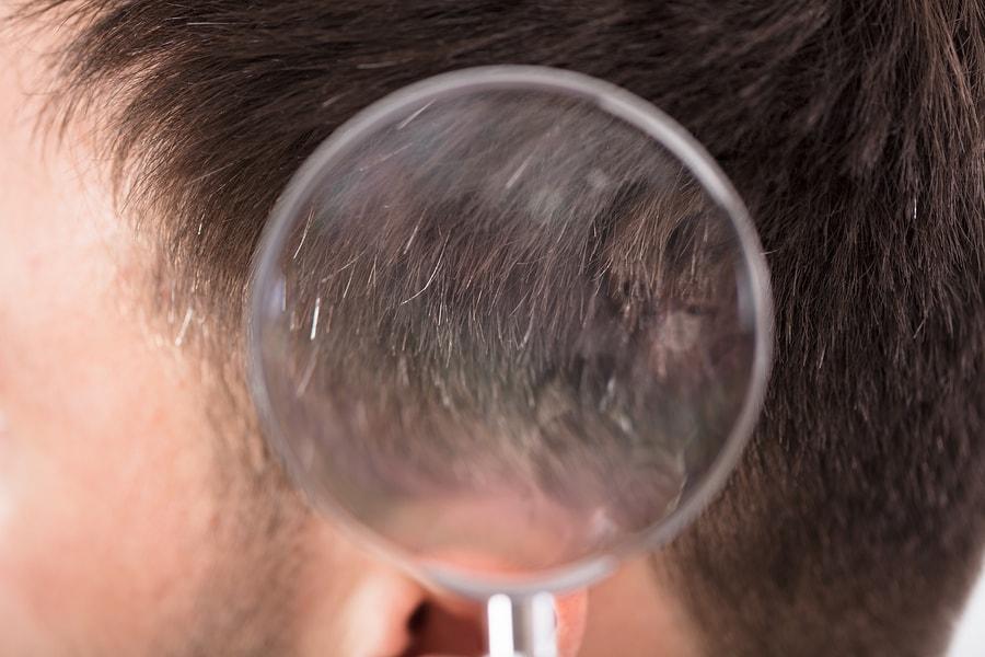 Haarausfall testen