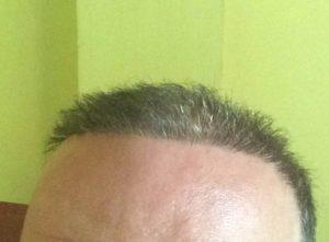Haartransplantation Türkei Erfahrungen - Dr. balwi
