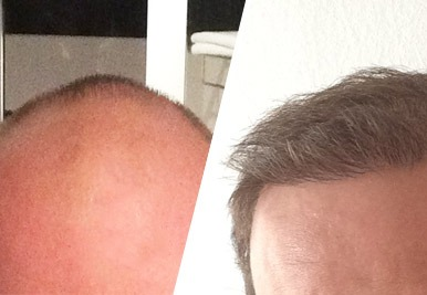 Haartransplantation bei Haarausfall - Erfahrungen