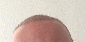 Haartransplantation in der Türkei - Meine Erfahrungen