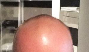 Meine Haartransplantation in der Türkei bei Dr. Balwi und meine Erfahrungen