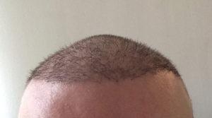 Haartransplantation Türkei Erfahrungen Dr. Balwi