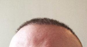 Meine Erfahrungen mit der Haartransplantation in der Türkei bei Dr. Balwi
