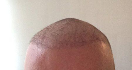 Meine Erfahrungen mit der Haartransplantation in der Türkei