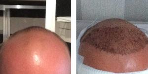 Michael's Haare vor und nach der Haartransplantation