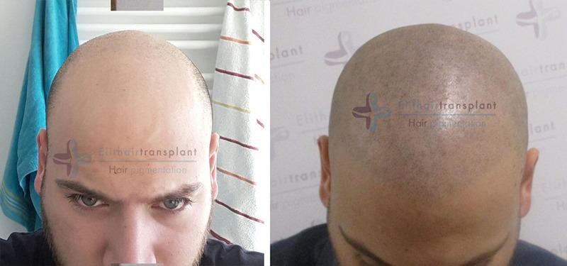Micro-Haarpigmentierung Erfahrungen
