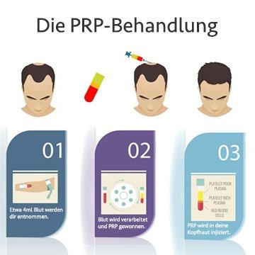 PRP Behandlung - Erfahrung, Kosten und Wirkung gegen Haarausfall