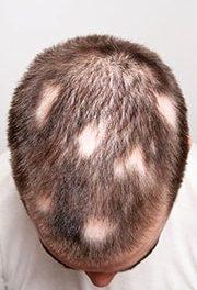 5 Dinge die ich bei meiner Haartransplantation anders machen würde