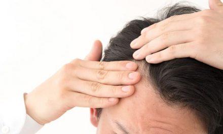 Haartransplantation gegen Geheimratsecken