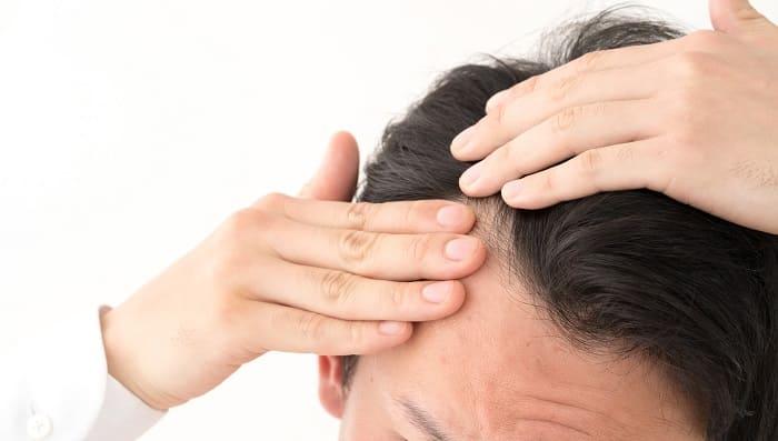 Haartransplantation gegen Geheimratsecken - Was sind die