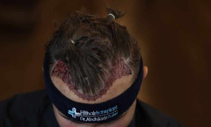 Haartransplantation hilft gegen Geheimratsecken