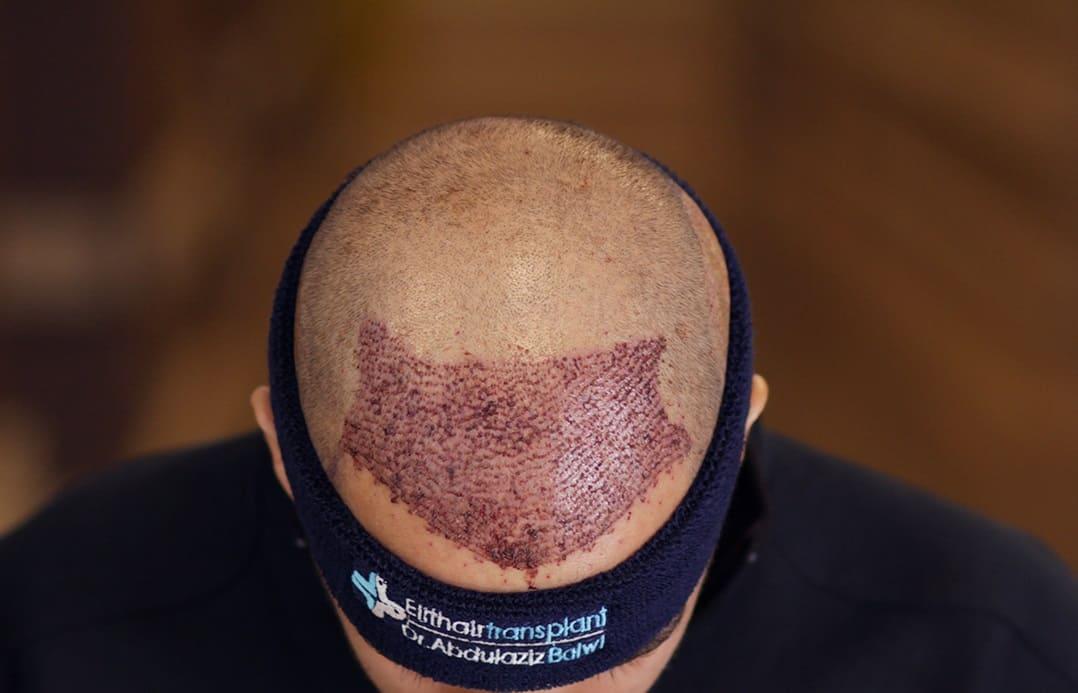 Haartransplantation in der Türkei - Haarausfallen.de