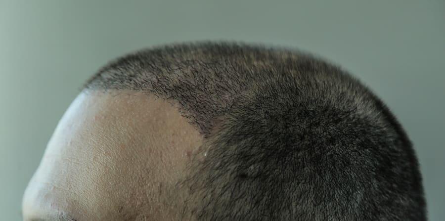 Ablauf einer Haartransplantation