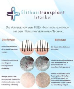 Perkutan Technik Haartransplantation