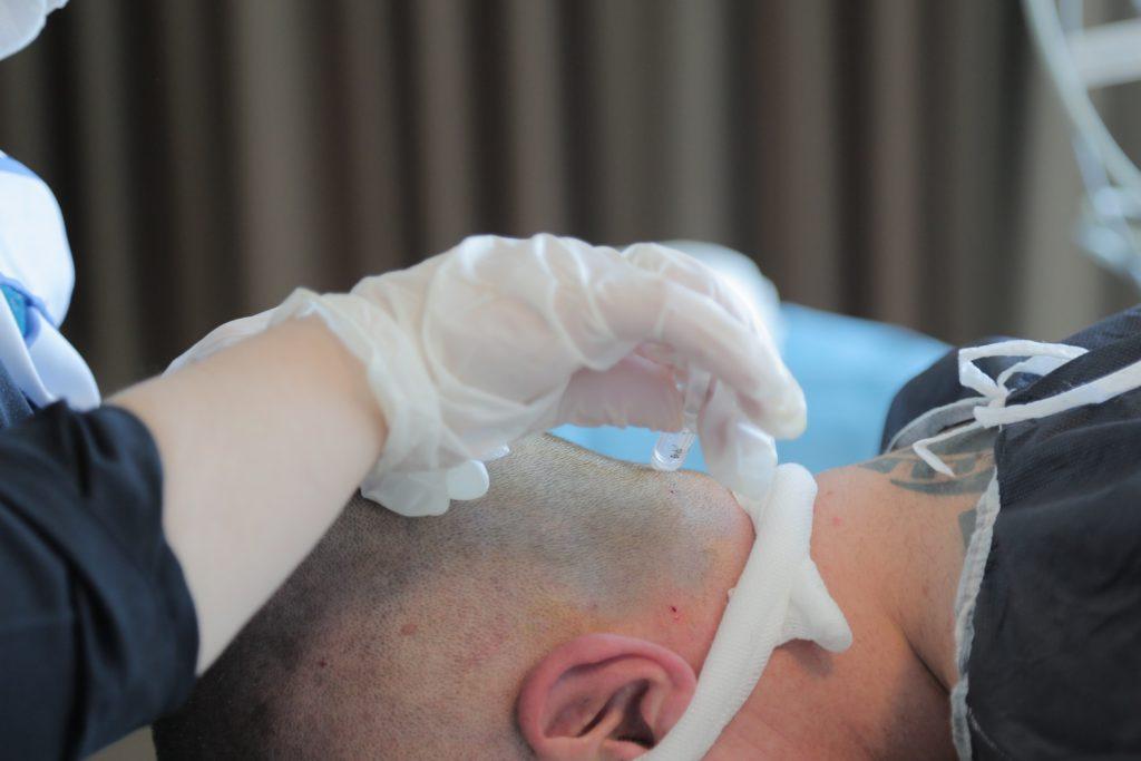 FUE Methode Haartransplantation
