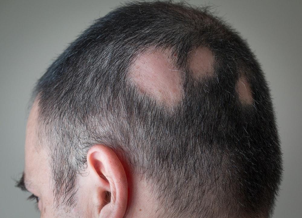 Arten von Haarausfall (Alopezie)