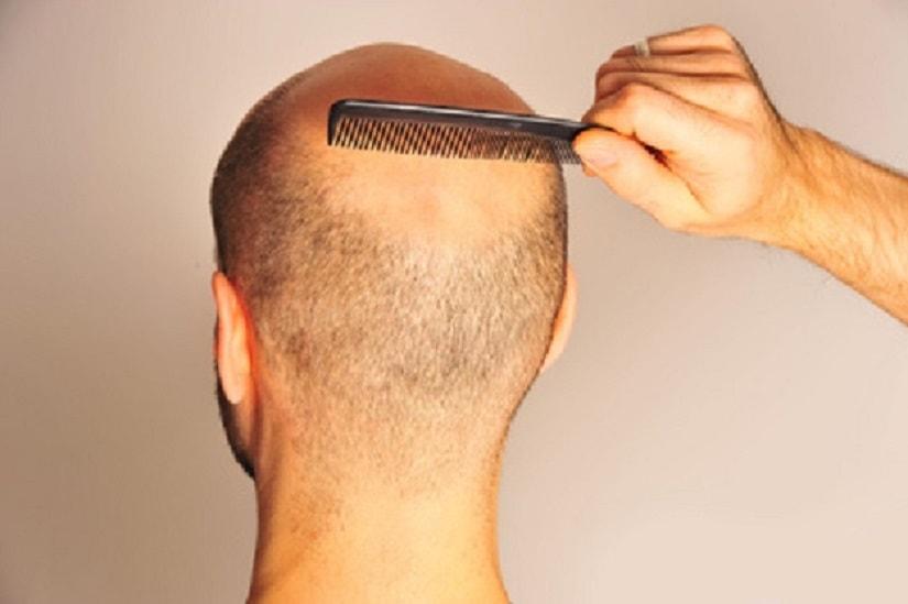 Diffuser Haarausfall und seine Formen