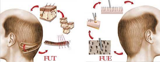 FUE vs. FUT Haartransplantation Methoden