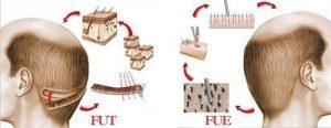 FUE vs. FUT – Wann welche Methode?