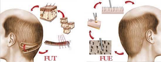 FUE vs. FUT Haartransplantation: was ist besser?