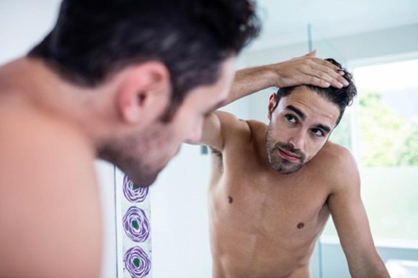Alopezie Haarausfallen