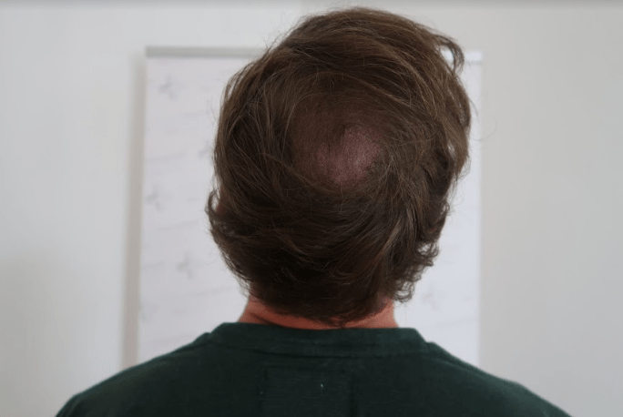 Alternativen einer Haartransplantation