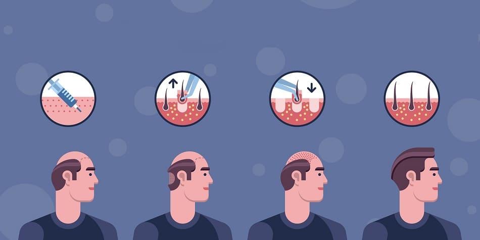 Der Prozess einer Haartransplantation in 4 Schritten