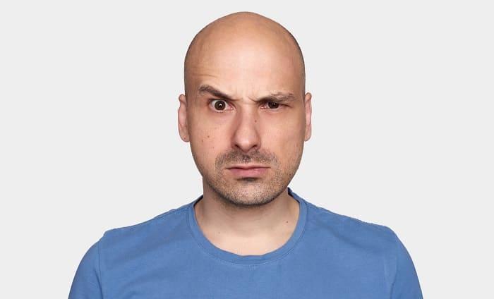 Gendefekt Glatze