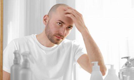 Wer ist für die Glatzen Vererbung zuständig?