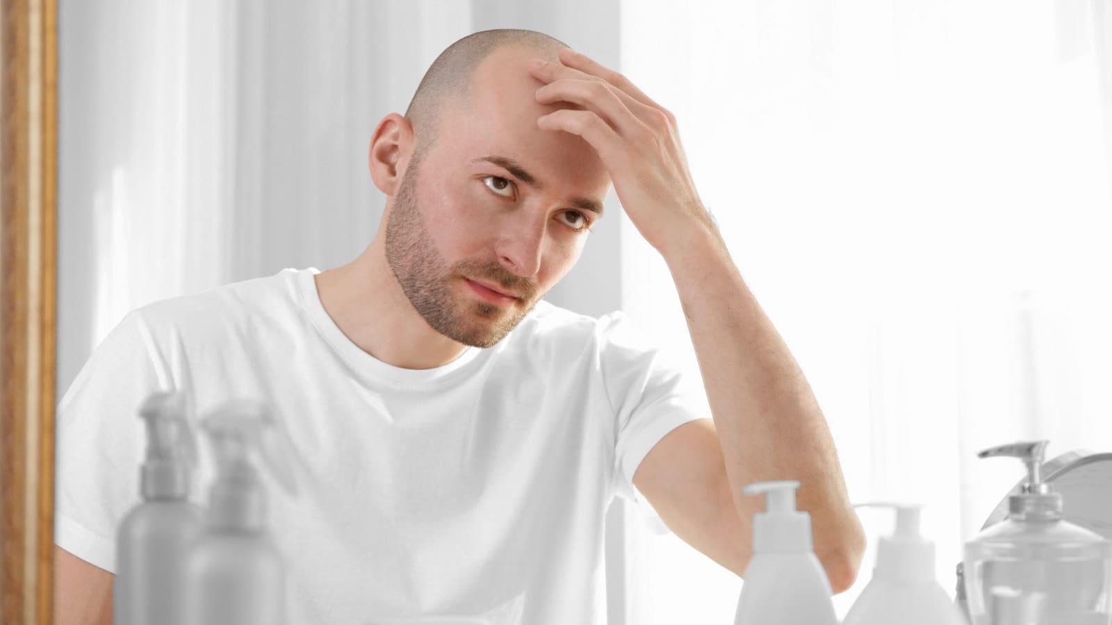 Glatze Vererbung