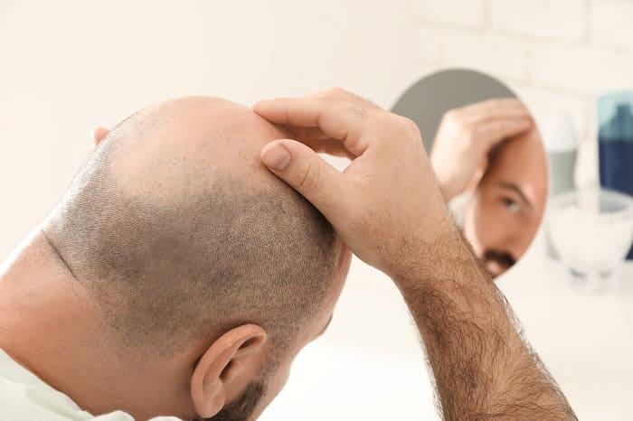 Was kann ich gegen die Glatzenbildung tun?