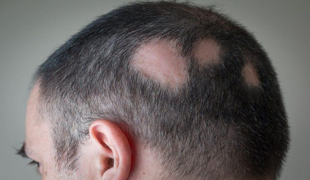 Haarausfall Symptom oder Krankheit - kreisrunder Haarausfall