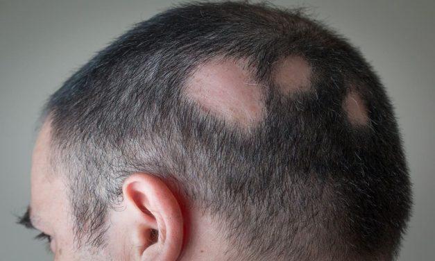 Ist Haarausfall ein Symptom oder eine Krankheit?