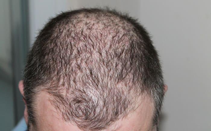Attraktiv und selbstbewusst - Haarausfall akzeptieren