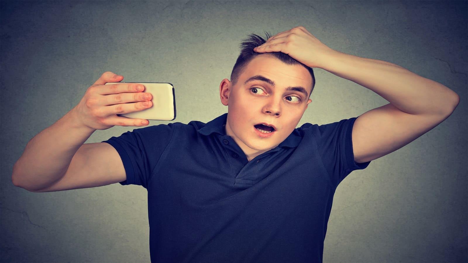 Männer und Haarausfall