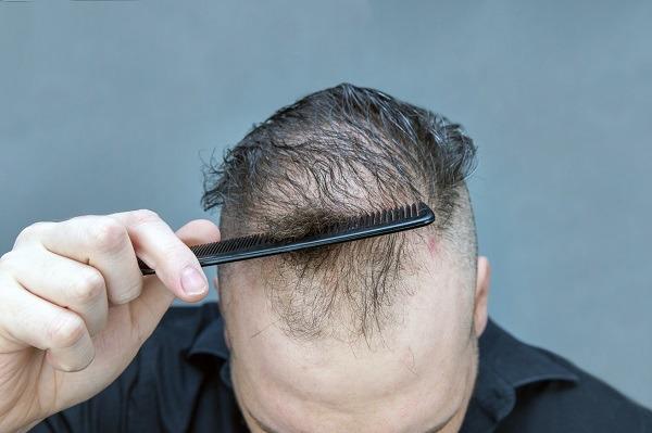 Haarausfall Symptom oder Krankheit - bei Männer