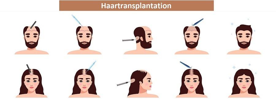 Haarausfall Symptom oder Krankheit - Haartransplantation