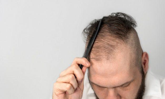 Wie funktioniert die Zelltherapie bei Haarausfall?