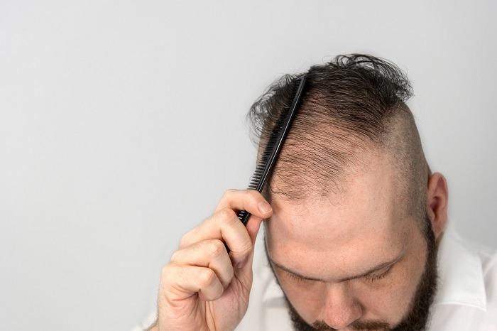 Zelltherapie Haarausfall