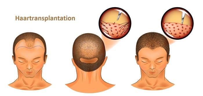 Zelltherapie bei Haarausfall - Ablauf der Haarmultiplikation Methode