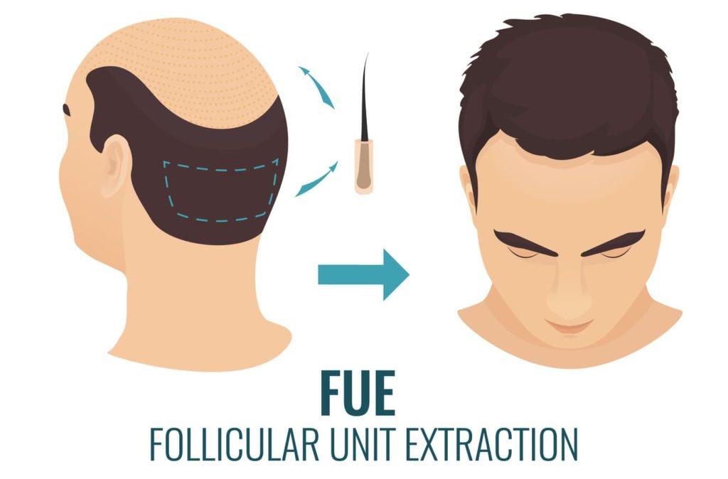 Zelltherapie bei Haarausfall - FUE-Haartransplantation