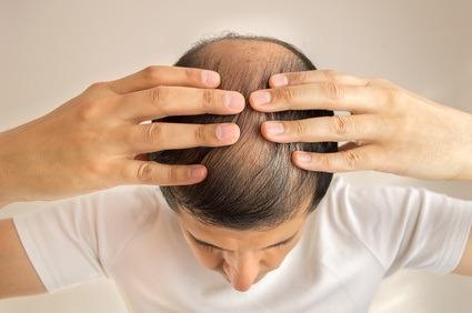 Zelltherapie bei Haarausfall