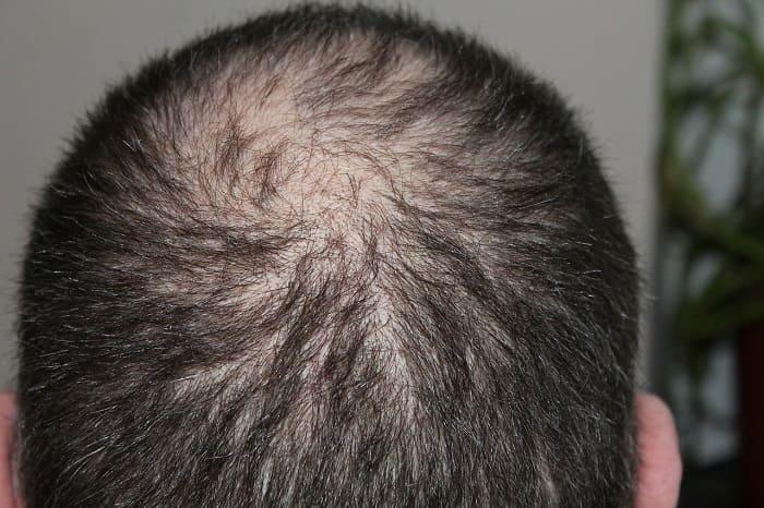 Androgenetischer Alopezie bei Männern - Typische Verlaufsform