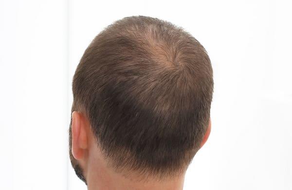Beweggründe für eine Haarverpflanzung - Haarausfall bei Jungen