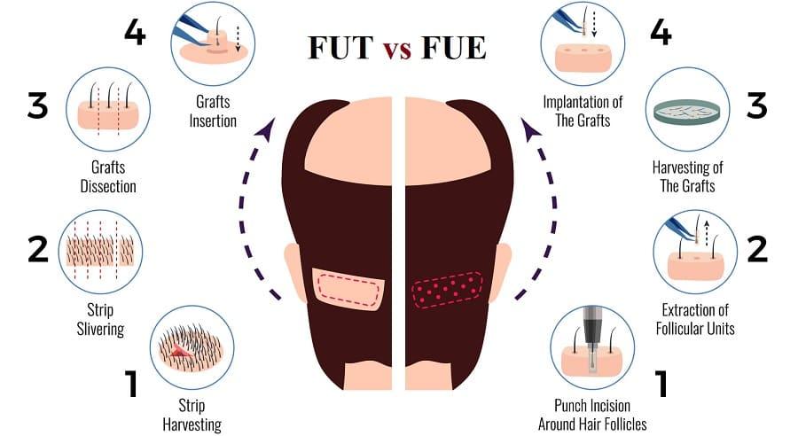 FUT vs FUE Haartransplantation - Welche ist besser?